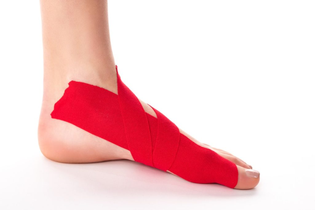 When do you need to tape an ankle for running?
